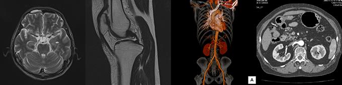 MRI・CI撮影写真
